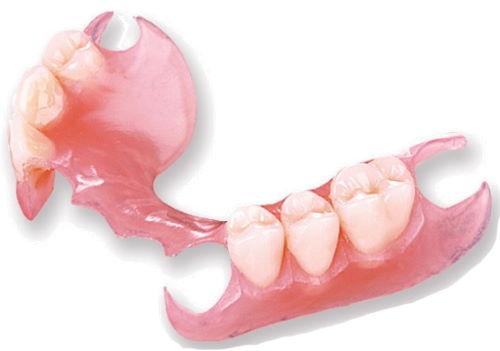 Removable Partial Denture